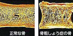 正常な骨と骨粗しょう症にかかっている骨の比較